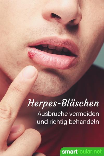Ingwer Bei Herpes