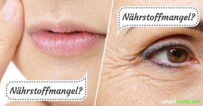 Welche Vitalstoffe fehlen deinem Körper? Das kannst du häufig schon mit einem Blick in dein Gesicht erkennen und deine Ernährung anpassen.