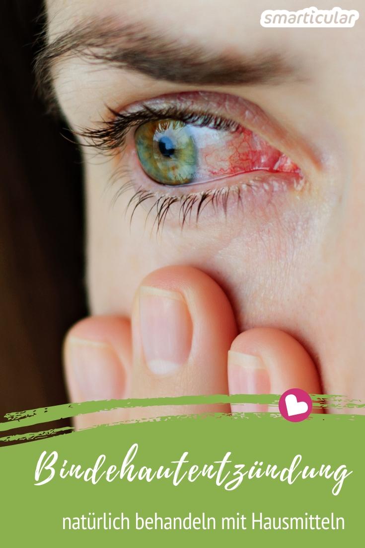 Eine Bindehautentzündung klingt meistens von allein ab. Dennoch kann die Heilung mit pflanzlichen Wirkstoffen und Hausmitteln gegen die Schwellung unterstützt werden.