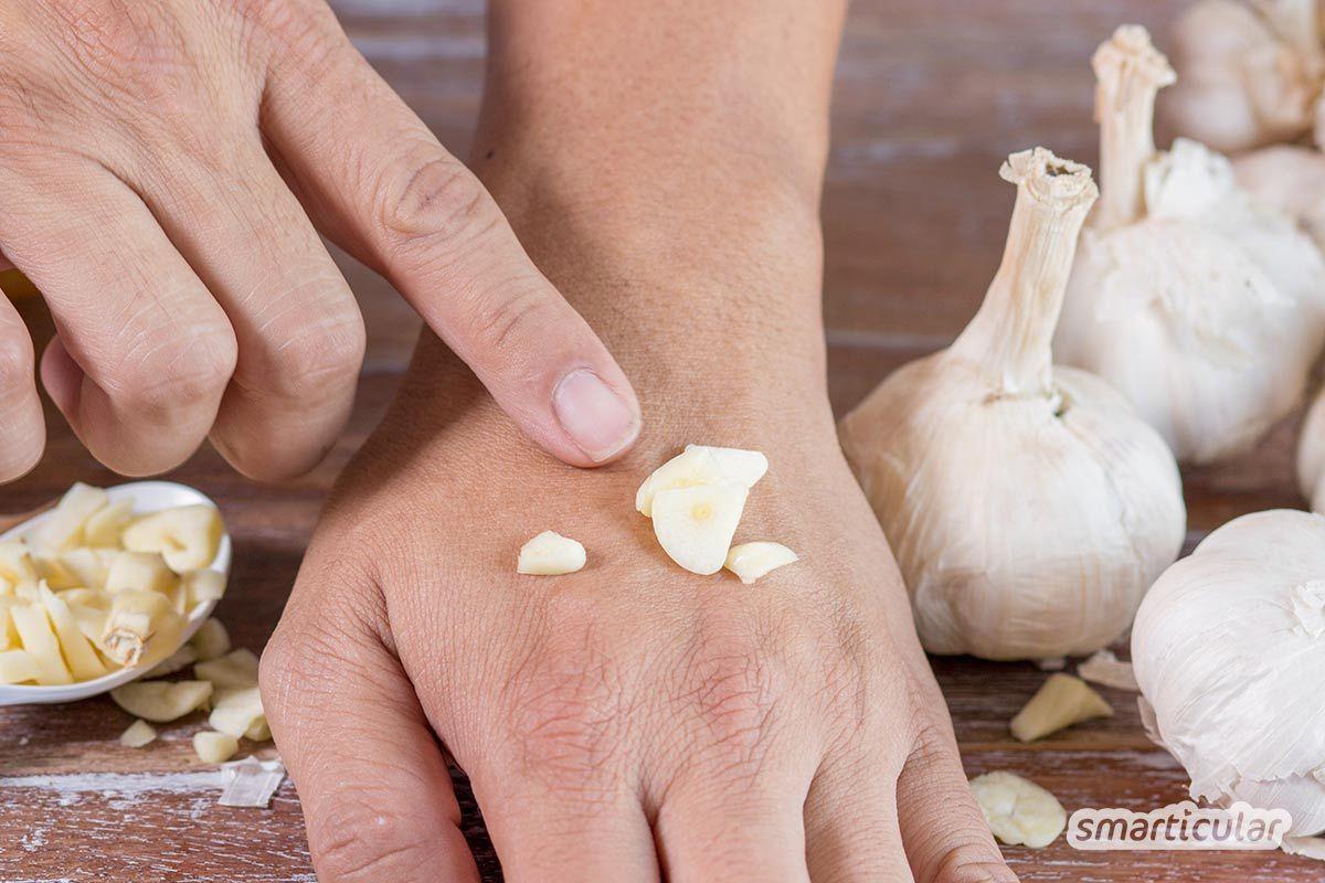 Einen Hautpilz hat fast jeder schon einmal gehabt - als Fußpilz. Um die lästigen Erreger zu bekämpfen und den Juckreiz loszuwerden, sind diese Hausmittel besonders wirksam.