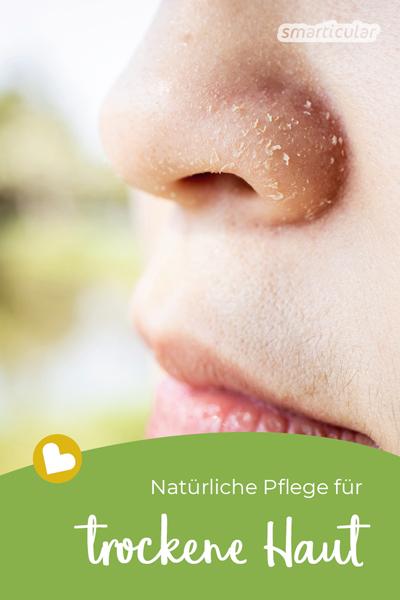 Mit einfachen Hausmitteln kann den Ursachen für trockene Haut entgegengewirkt werden. Eine DIY-Schüttellotion und eine reichhaltige Bodybutter nähren und pflegen sie.