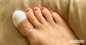 Nagelpilz lässt man besser vom Arzt behandeln. Gegen Nagelpilz und Fußpilz vorbeugen kann man aber bestens mit Hausmitteln!