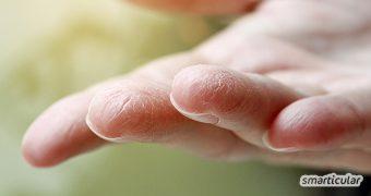 Trockene, rissige Hände werden dank sanfter Pflege mit natürlichen Wirkstoffen wieder weich und geschmeidig.