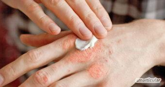 Schuppenflechte lässt sich mit einfachen Hausmitteln lindern. So unterstützt du sinnvoll eine ärztliche Behandlung, und die Haut wird wieder weicher.