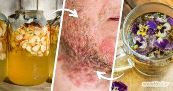 Das seborrhoische Ekzem gilt zwar bisher als nicht heilbar. Trotzdem können einfache Hausmittel die Symptome lindern und die gereizte Haut beruhigen.